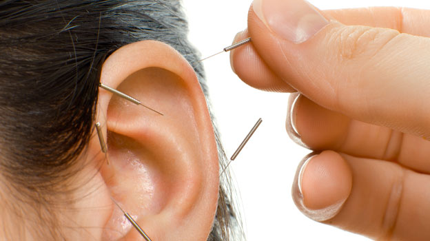 ear acupuncture weight loss